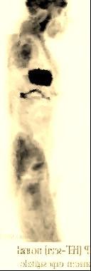 Lascintigraphie: une méthode d'imagerie médicaledemédecine nucléaire